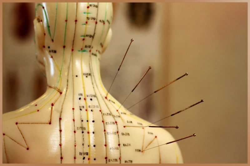 Acupuncture is one of the most popular forms of Chinese medicine